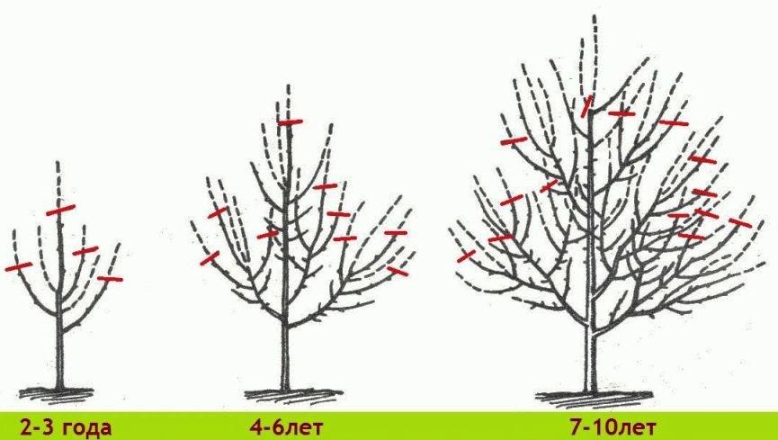 Поэтапная формировка кроны дерева за 10 лет